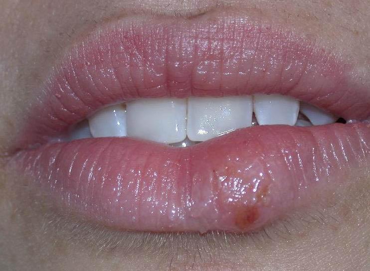 ... Herpes Symptoms Diagnosis Treatment Of Genital | 2016 Car Release Date